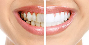 Smile Doctor Before and After Gum Treatments