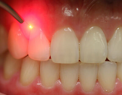 Smile Doctor Soft Tissue Gum Treatment